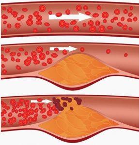 bloedvaten, vet, cholesterol, hart